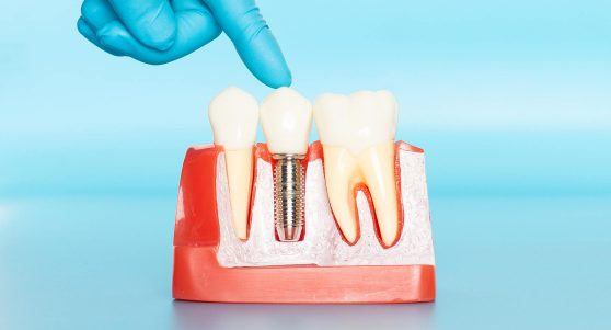 Missing Teeth Consider Dental Implants Cambridge Family Dentistry Wichita Ks