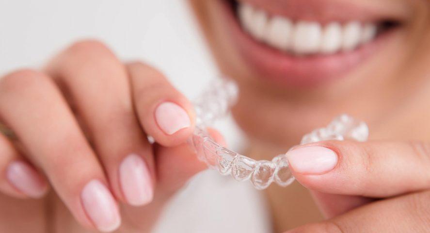 Brilliant Smile Teeth Whitening Cambridge Family Dentistry Wichita Ks
